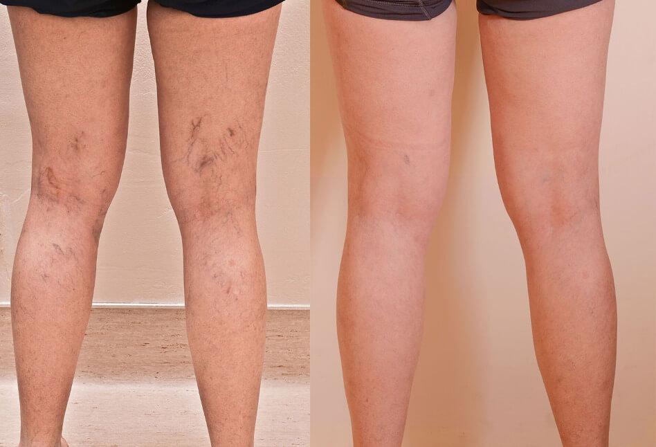Leg-Vein-Treatment