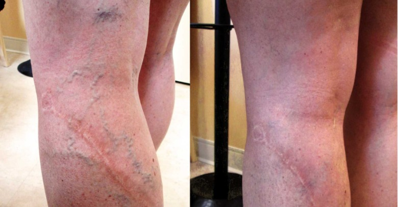 before-after-spider-vein-therapy-18-months