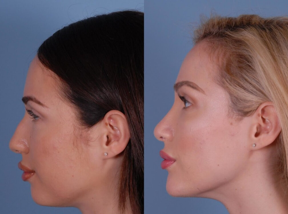 chin-cheek-augmentation-before-after