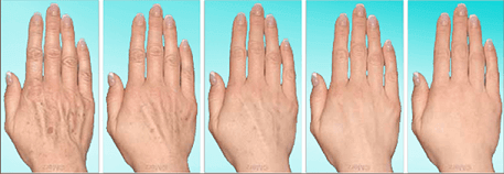 hand-rejuvenation_03 (1)