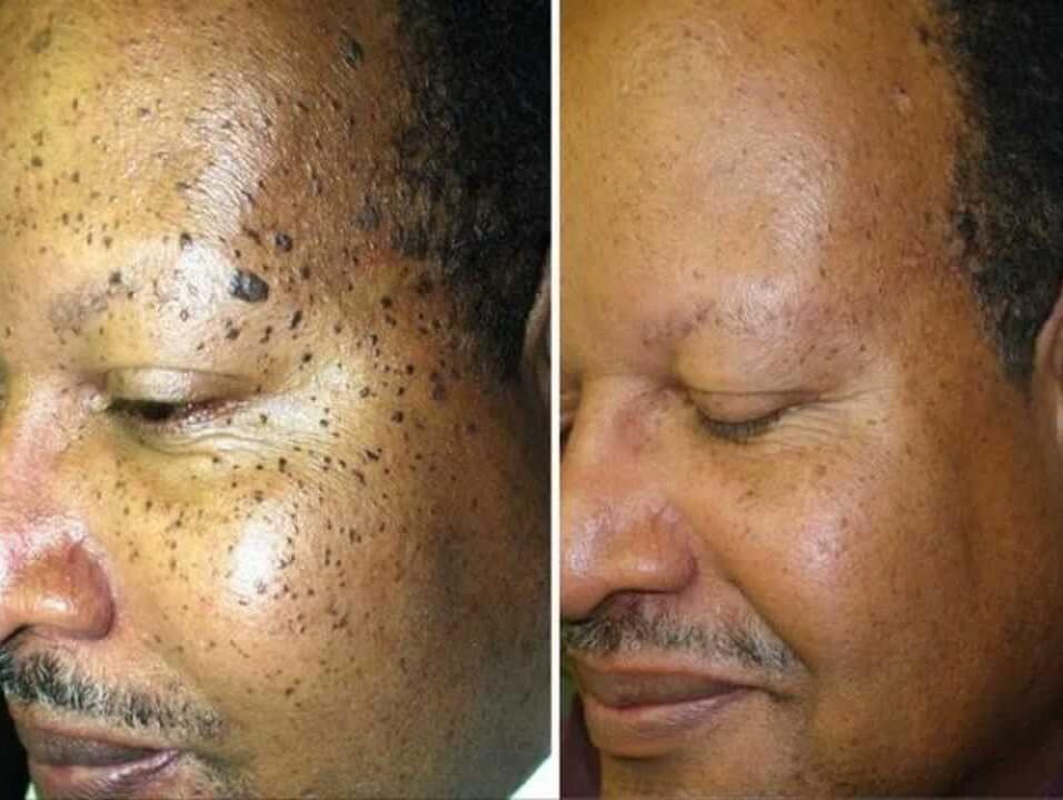 skin-tags-moles-warts-removal